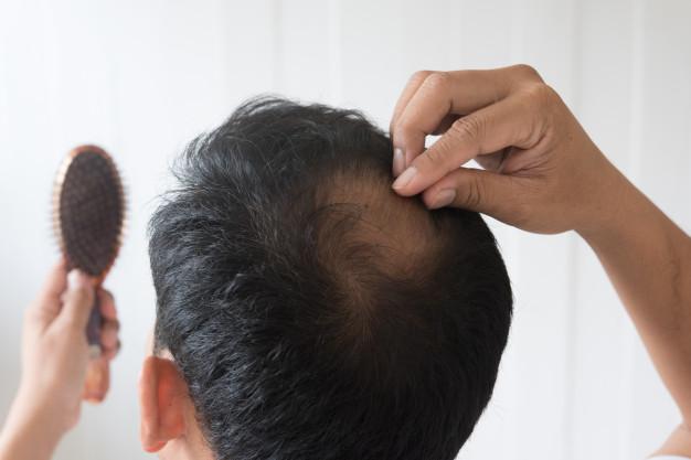 hair-loss-gotocure